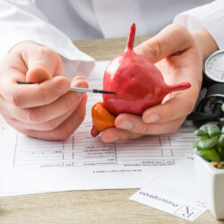A cancer doctor explaining bladder cancer using a model of the bladder | cCARE | Fresno and San Diego, CA
